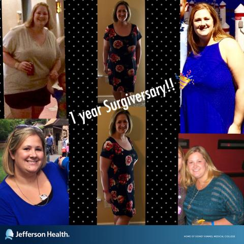 Jefferson Health - New Jersey, Bariatrics, Bariatric Surgery, Testimonial